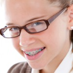 smiling girl with colored braces